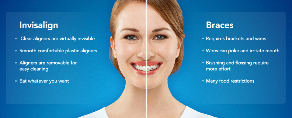 invisalign smile philly